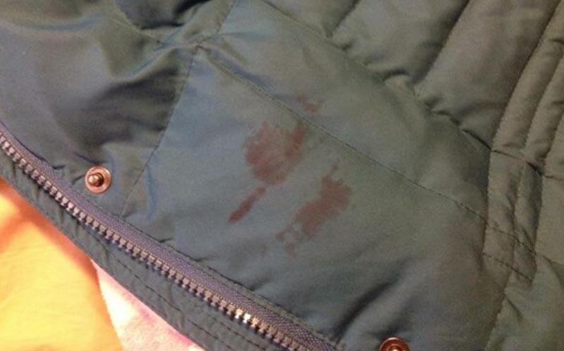 Как избавится от жирного пятна на куртке в домашних условиях - Automee-s.ru